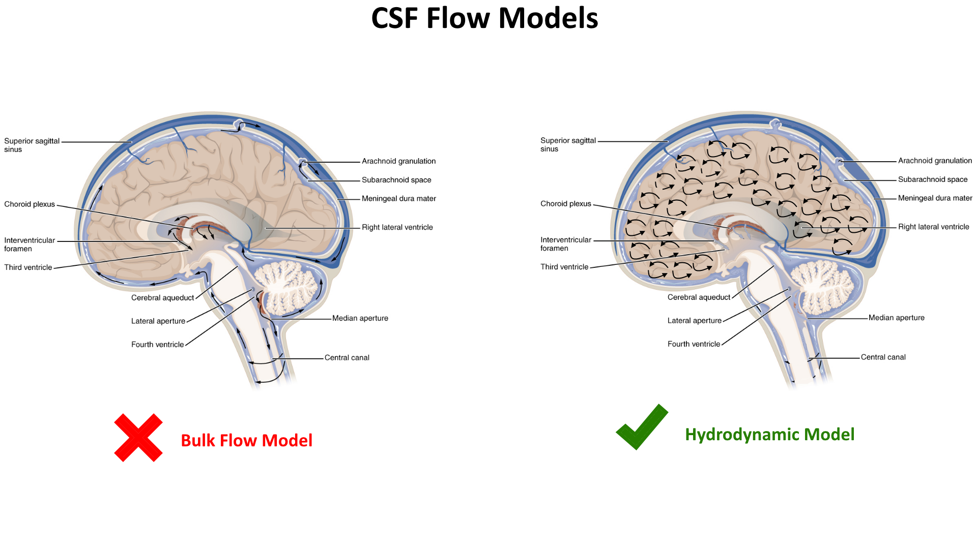 bulk flow csf vs hydrodynamic csf