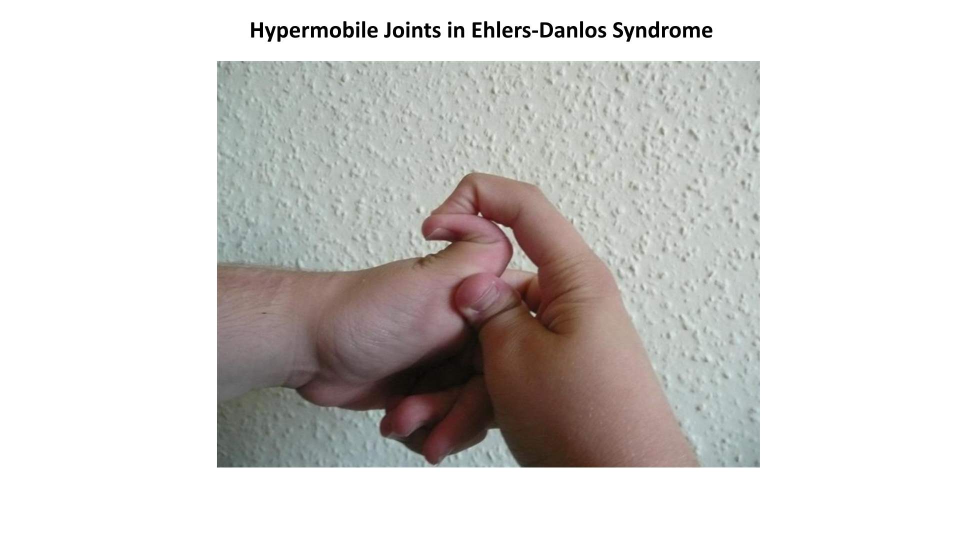 hypermobility in ehlers-danlos syndrome