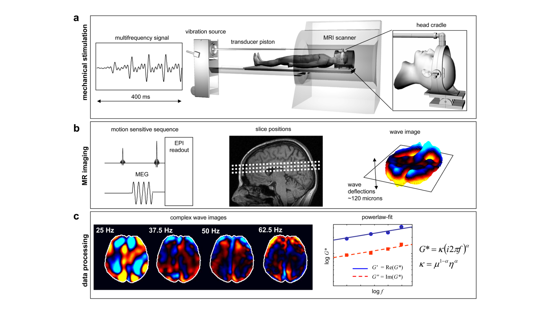 magnetic resonance elastography