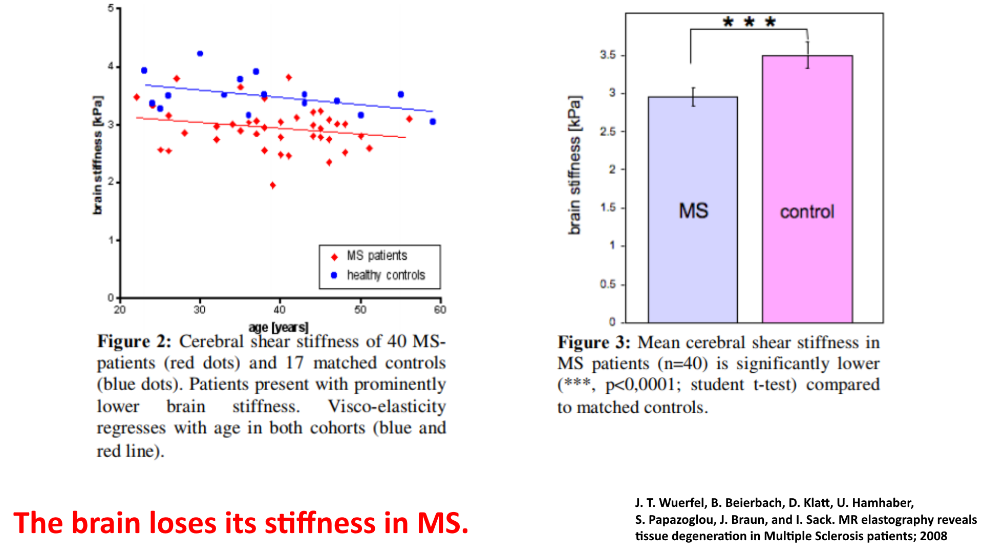 brain stiffness in ms patient and control