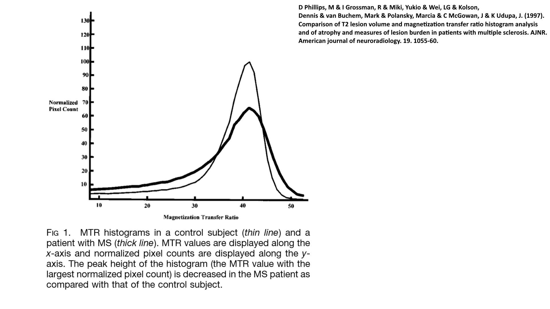 MTR histogram of multiple sclerosis patient compared to control