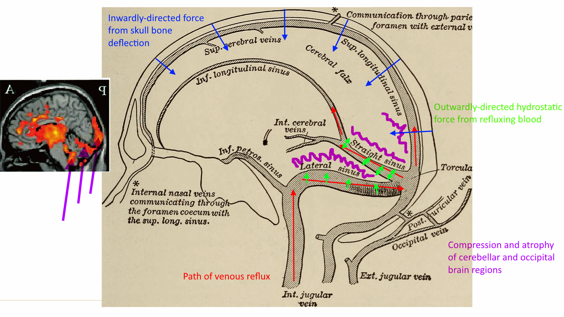 compression and atrophy of occipital and cerebellar regions