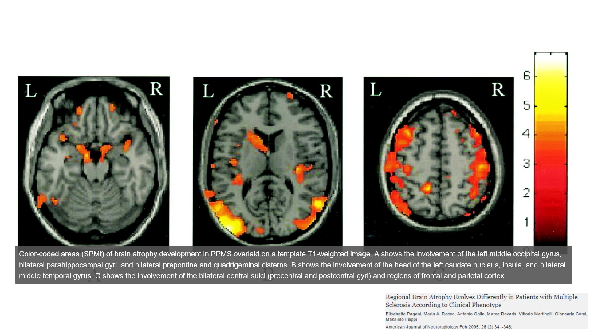 brain atrophy in primary progressive multiple sclerosis