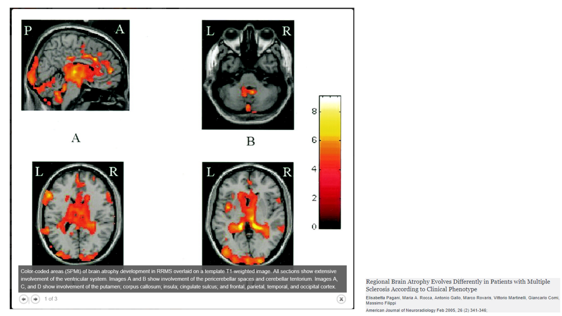 regional brain atrophy in relapse remitting multiple sclerosis