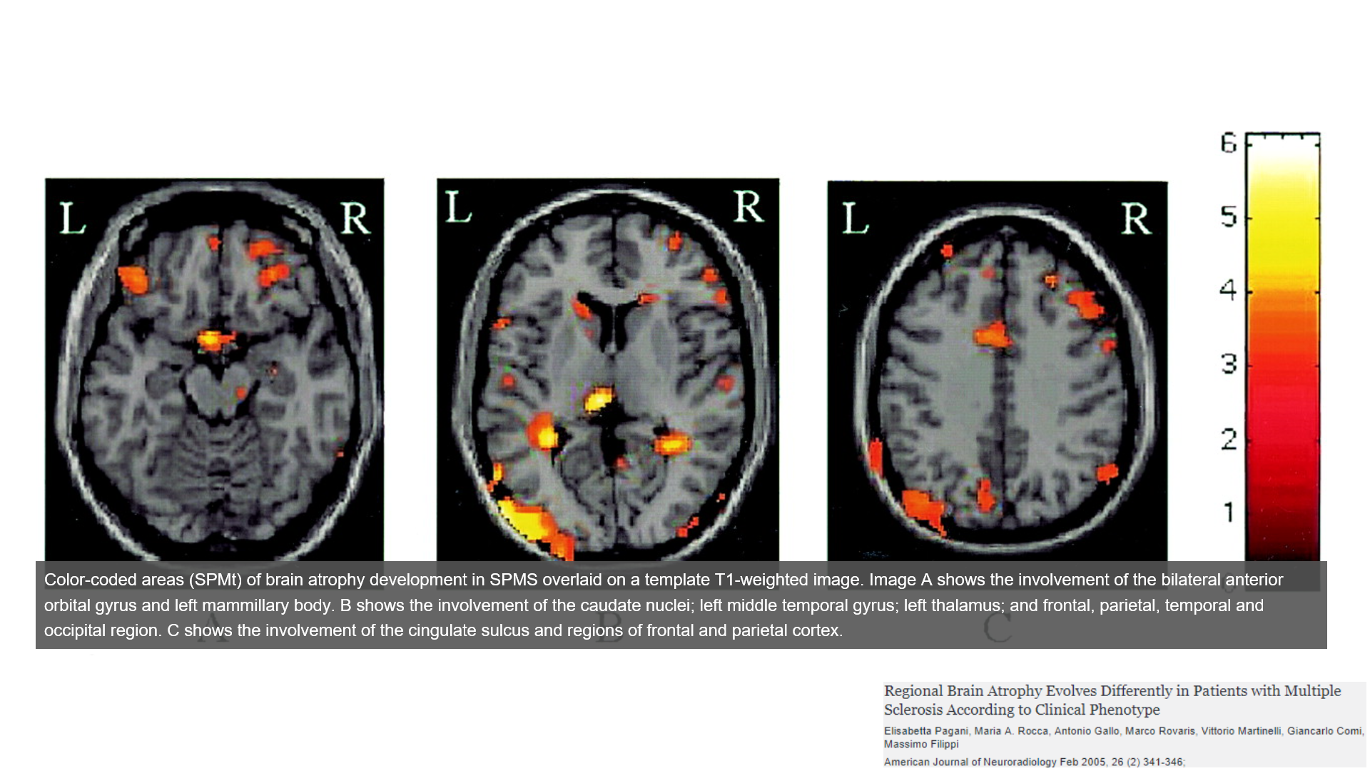 secondary progressive multiple sclerosis brain atrophy